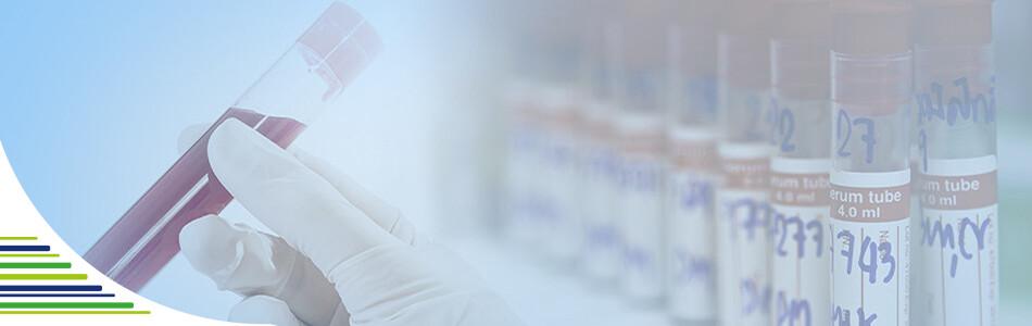 Co nám říkají zvýšené jaterní testy?