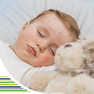 Co je šestá nemoc a její příznaky u dětí