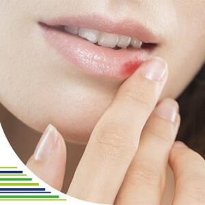 Co je herpes?