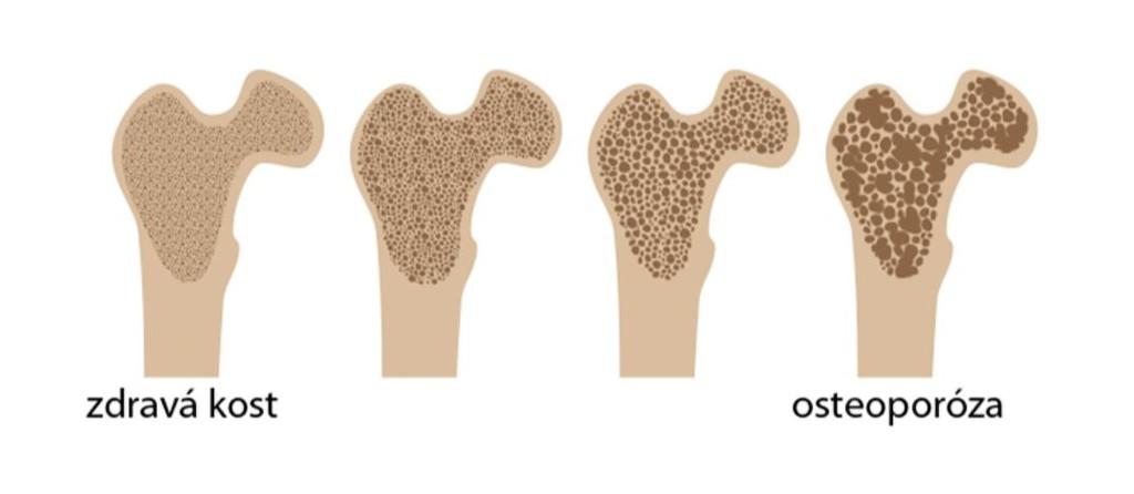 zdravá kost vs. osteoporóza